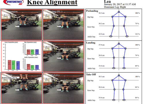 Sportsmetrics Knee Alignment| Fysiotherapie SMC Zaanstad
